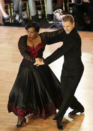 Amber Riley's Dancing With the Stars Knee Injury: Going to a Doctor!