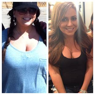 Lauren Manzo's Breast Reduction — See the Before and After Pics! (PHOTOS)