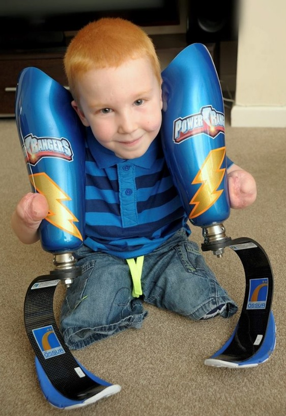 This 5-Year-Old's Power Rangers Prosthetic Blades Are Too Freaking Cool (VIDEO)