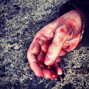 Grey's Anatomy Season 10 Spoilers: Jesse Williams Shows Jackson's Bloody Hand — Is He Hurt?
