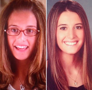 "Lexi Manzo Flashes Back to ""Awkward Stage"": Then and Now!"