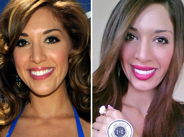 Farrah Abraham Flashes a Brighter Smile — Did She Get Veneers? (PHOTO)