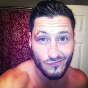 Dancing With the Stars 2013 Finals: Val Chmerkovskiy Talks Bloody Eye Injury (VIDEO)