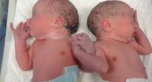 Newborn Twins Hold Hands In Miraculous Photo