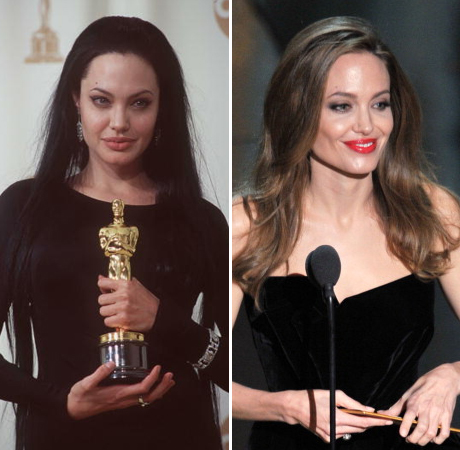 Angelina Jolie: I Had a Double Mastectomy