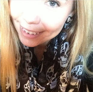 When Is Kailyn Lowry Getting Her Braces Removed?