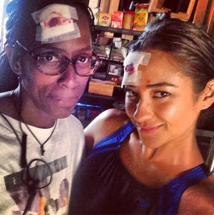 Pretty Little Liars Star Shay Mitchell Shows Off Emily's Bloody Head Wound (PHOTO)