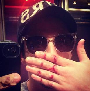 Vampire Diaries' Michael Trevino Shares Bloody Photo on Twitter