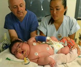 Baby Jasleen: Germany's Record-Breaking 13-Pound Baby Born Without C-Section (VIDEO)