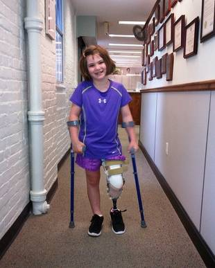7-Year-Old Jane Martin, Who Lost Brother in Boston Bombing, Gets a New Leg (PHOTO)