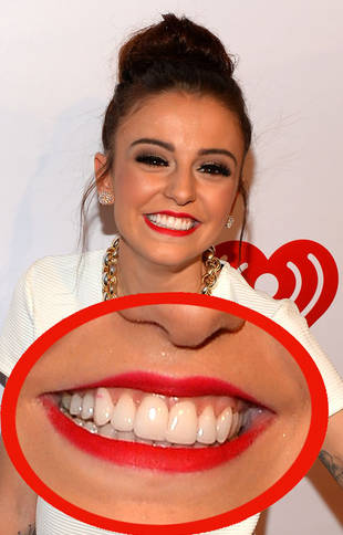 X Factor UK Sensation Cher Lloyd's Major Mouth Transformation (PHOTO)