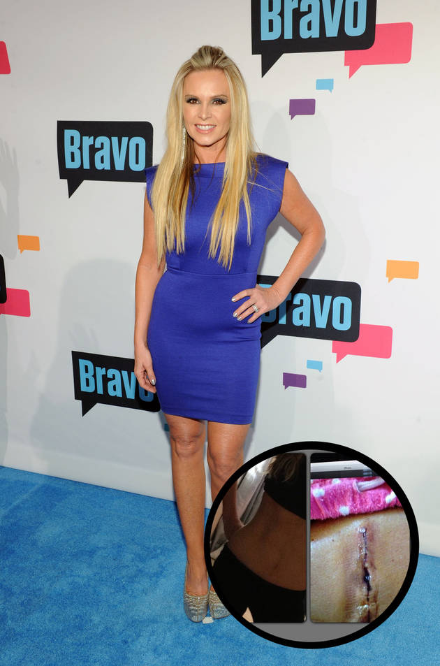 "Tamra Barney Admits She Used to ""Starve Herself"" — But Looks ""Hotter Now"""