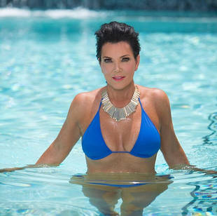 Did Kris Jenner Get More Plastic Surgery? Experts Weigh In!