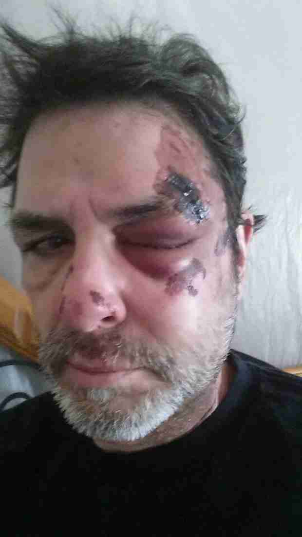 Big Brother's Evel Dick Seriously Injures Face in Mystery Bike Accident (PHOTO)