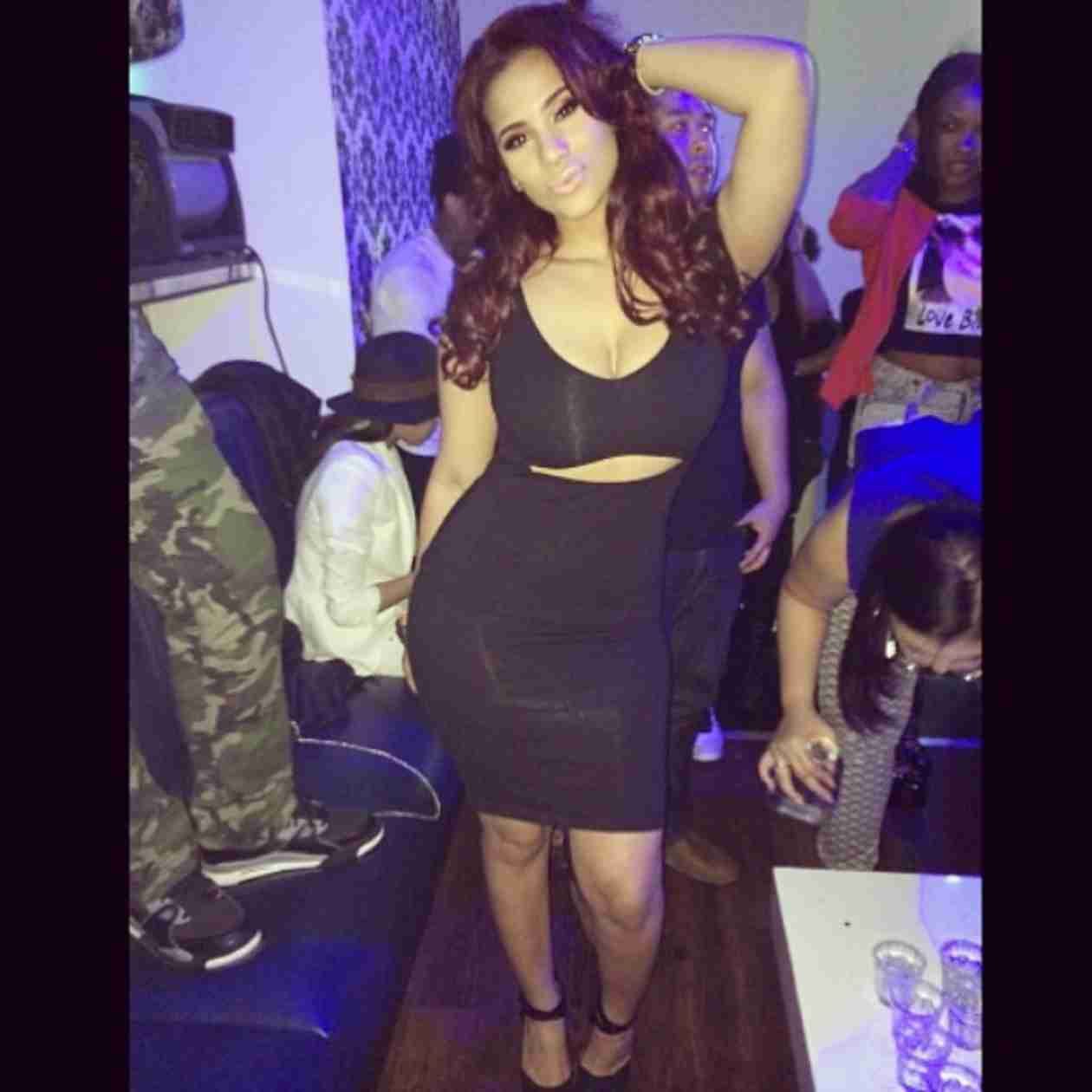 Cyn Santana Undergoes Surgery — What Did She Have Done? (PHOTO)