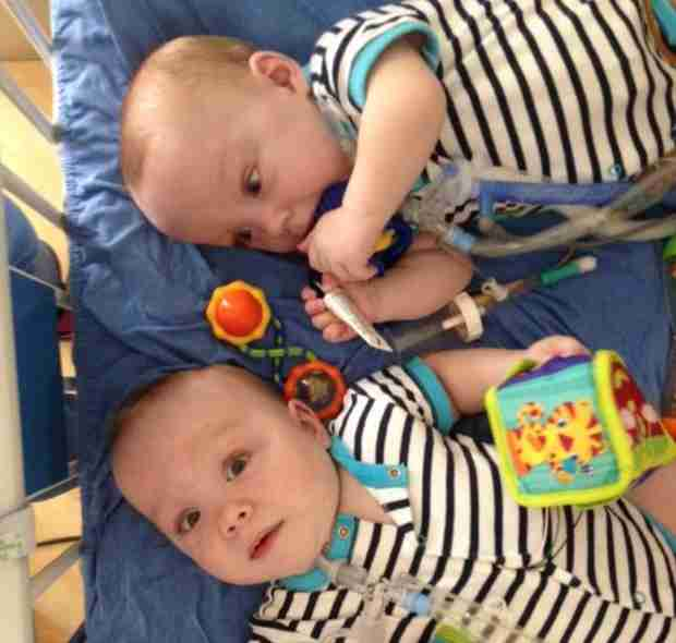 Surgically Removed Conjoined Twins Go Home 11 Months After Birth