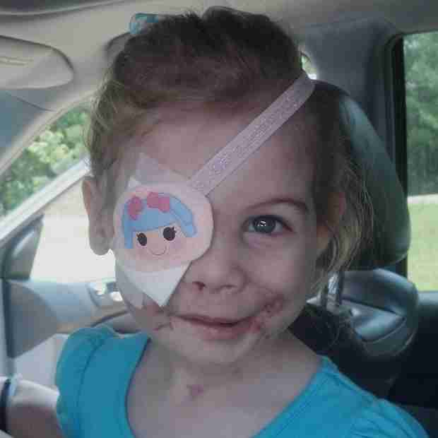 "Toddler Scarred By Dog Attack Asked to Leave KFC Because Her Face ""Disrupted Customers"" (UPDATE)"