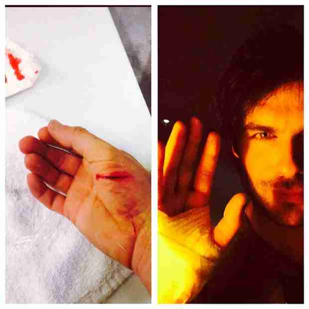 Ian Somerhalder Visits Emergency Room After Slicing Hand — Is He OK? (PHOTO)