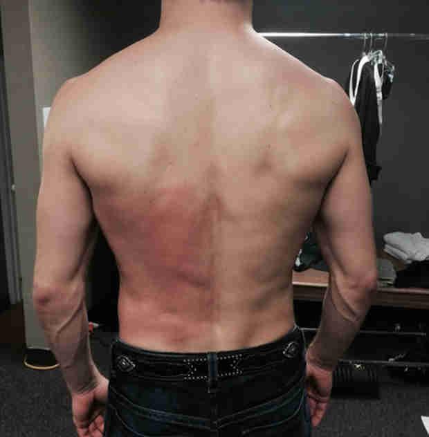 Derek Hough Injures Back, Gets Treatment (PHOTO, VIDEO)