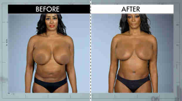 Flavor of Love's Saaphyri Reveals Plastic Surgery Disaster on E!'s Botched — See Her Transformation! (PHOTOS)