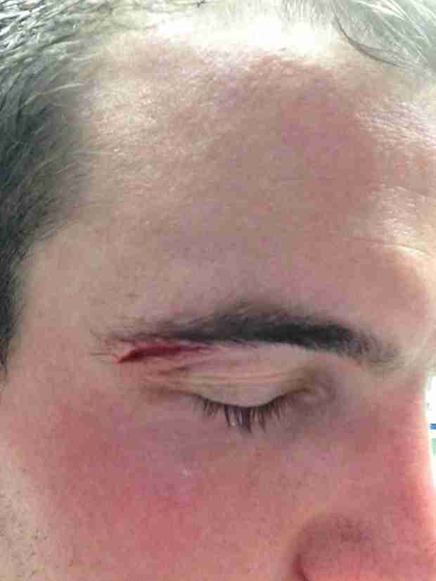 Bachelorette's Brian Osborne Rushed to Emergency Room! What Happened?