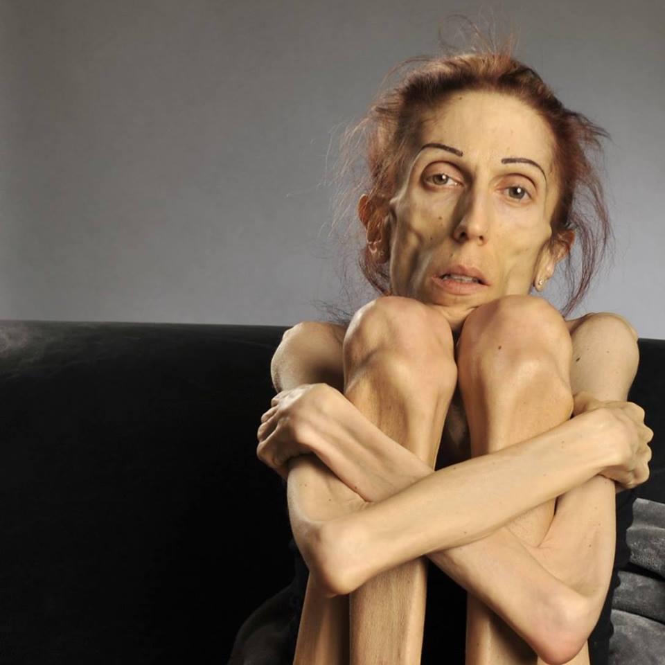 Anorexia Activist Rachael Farrokh Rebounding After Dropping to 40 ...: www.wetpaint.com/40-pound-anorexic-woman-rachael-farrokh-1450613