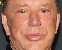 Mickey Rourke, celebrity facelifts