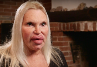Transgender Plastic Surgery Addict Spent $72,000 on Procedures (VIDEO)