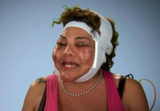 'Botched' Season 3: Watch the Promo! (VIDEO)