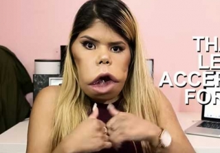 This YouTuber Is Turning Her Facial Tumor Into a Positive Career (VIDEO)